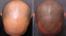 Follicle Replication Gallery and Treatment